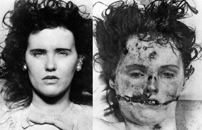 Elizabeth Short sokat szenvedett a halála előtt